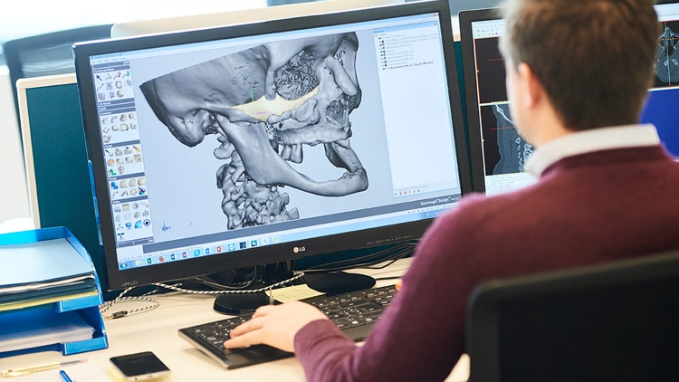 Creating the blue print for teeth prosthetic - Client case study CADskills